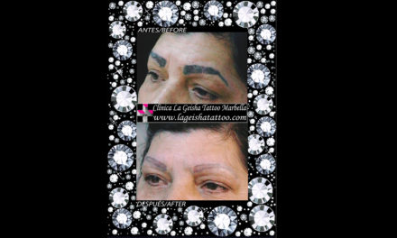 Magic eyebrows micropigmentation removal in just one session