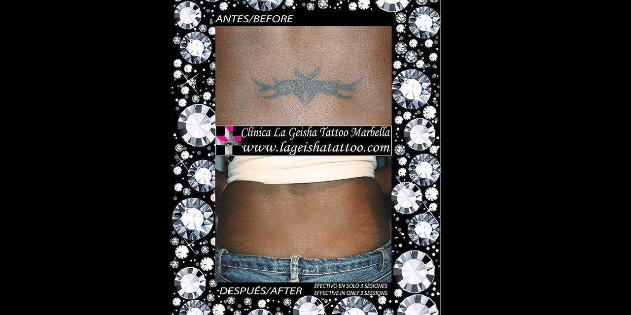 Increible y mágica eliminación de tatuaje mal realizado de un tribal en piel negra