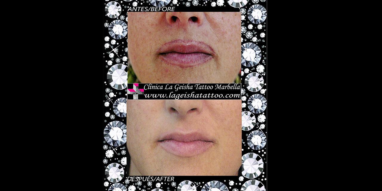 Mágica eliminación de manchas y micropigmentación de labios